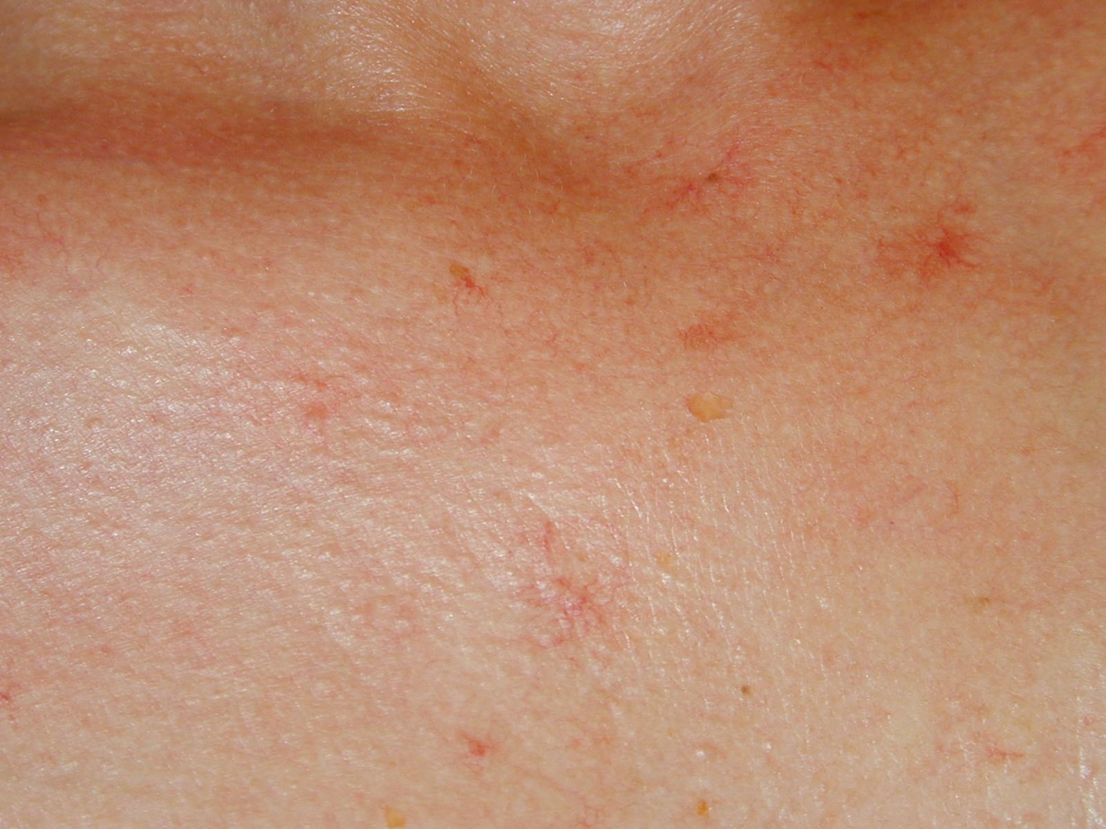 Sos cicatrices acn marques rouges for Que portent les juifs sur le front