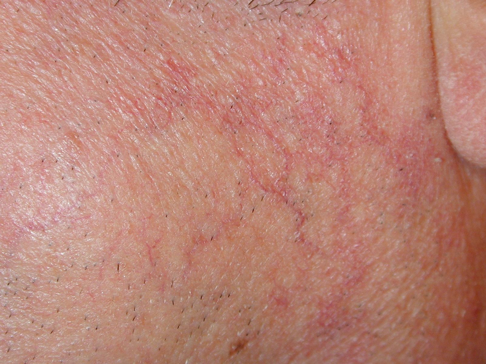 Le traitement du psoriasis par lultraviolet à moskve