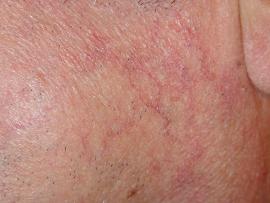 rougeurs du visage et du cou couperose erythrose erythro couperose les traitements. Black Bedroom Furniture Sets. Home Design Ideas