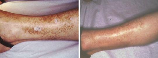 Akvadetrim linstruction pour lapplication par ladulte au psoriasis