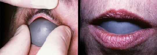 Askoroutin des taches de pigment sur la personne